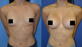 Breast Actives Reviews Should You Buy It